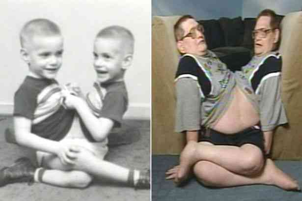 World's oldest conjoined twins, Donnie and Ronnie Galyon - Znebs